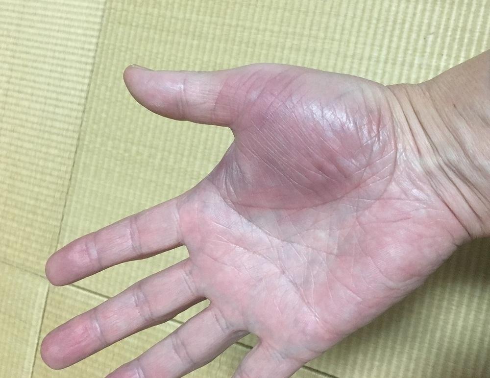 右手負傷中です